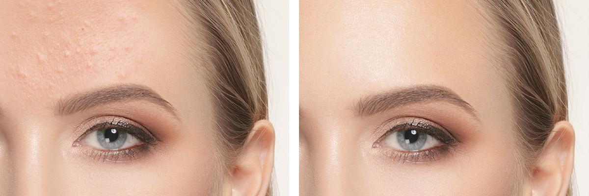 Marcas y cicatrices causadas por el acné